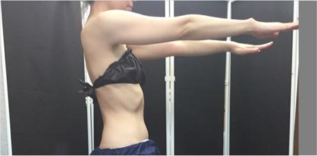 部分痩せコース~二の腕・背中施術~01